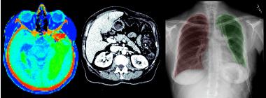 Анализ медицинских изображений в Python